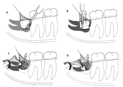 Zabieg usunięcia zatrzymanego zęba