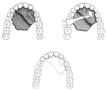 Ząb atrzymany w podniebieniu