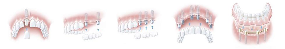 Implanty zębowe i uzupełnienia protetyczne