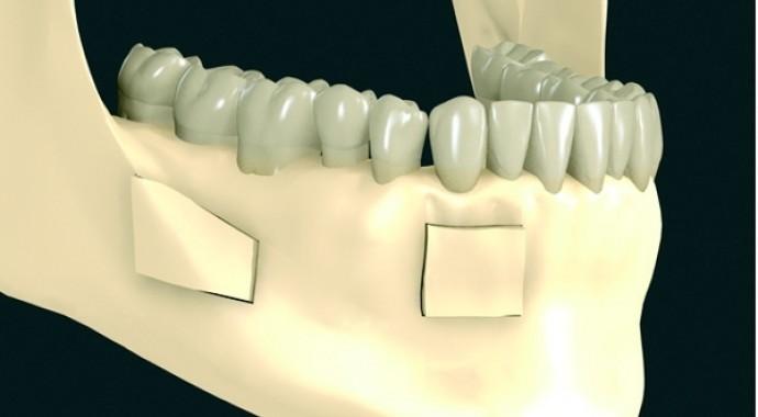 Przeszczepy bloczków własnopochodnej kości