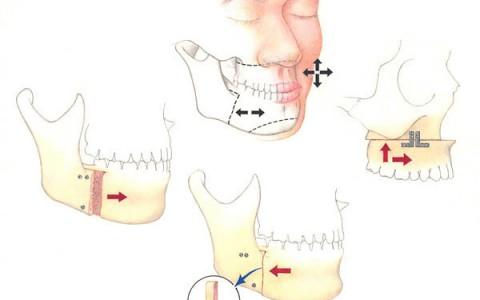 Chirurgia ortognatyczna