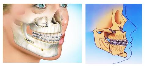 leczenie wad kostnych zgryzuu