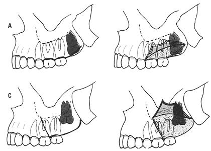 Zatrzymany ząb