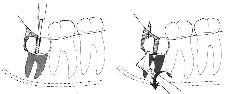 Ekstrakcja zatrzymanego zęba