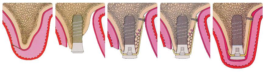 sterowana regeneracja kości