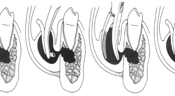 Leczenie stanów zapalnych tkanek miękkich i kości części twarzowej czaszki