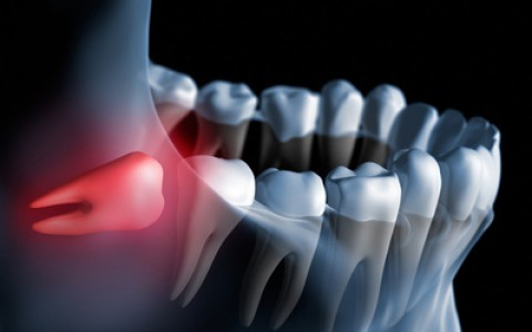 Chirurgiczne usunięcie zęba zatrzymanego