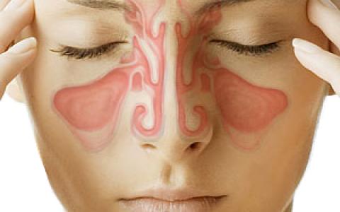 Leczenie chorób zatok szczękowych