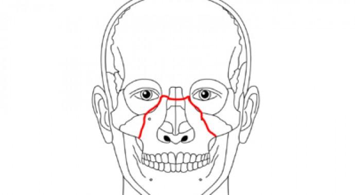 Leczenie operacyjne złamań kości twarzy