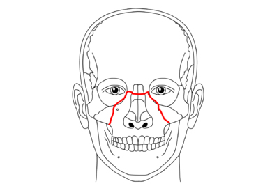 Złamanie kości twarzy